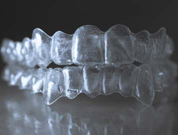 invisalign-braces-midwestern
