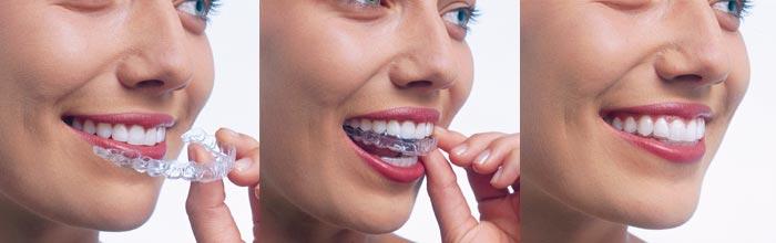 invisalign-orthodontics-midwestern-collage