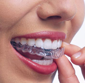 invisalign-adult-midwestern-4