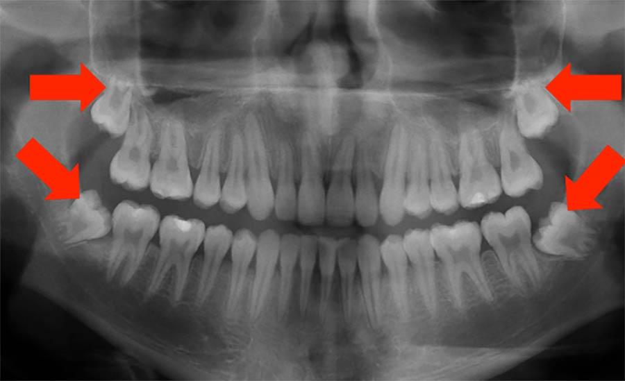 wisdom-teeth-xray-midwestern-aligner-orthodontics